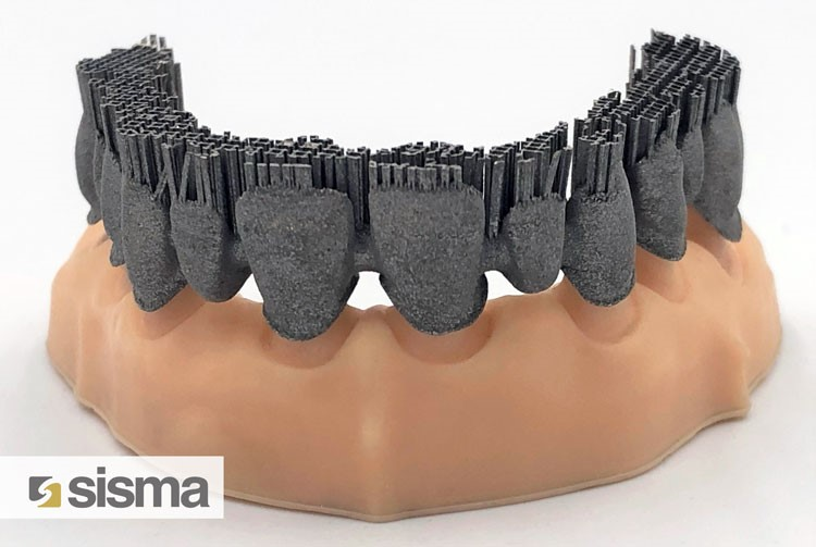 """As built"" dental arch produced by Sisma with LMF technology"